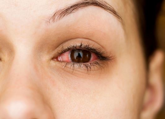 Are Eye Infections Contagious?